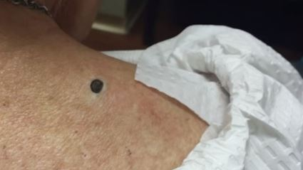 Dr. Pimple Popper is Back With A 1 Million Subscriber Video